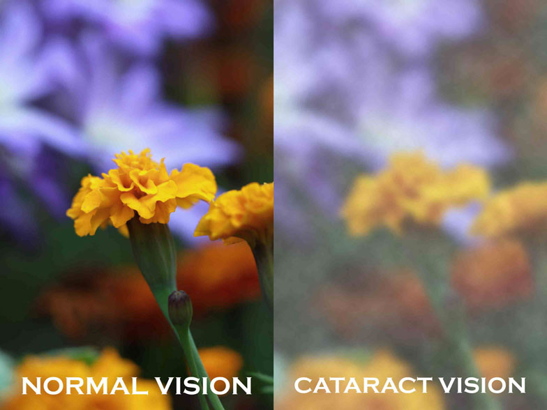 cataract vision