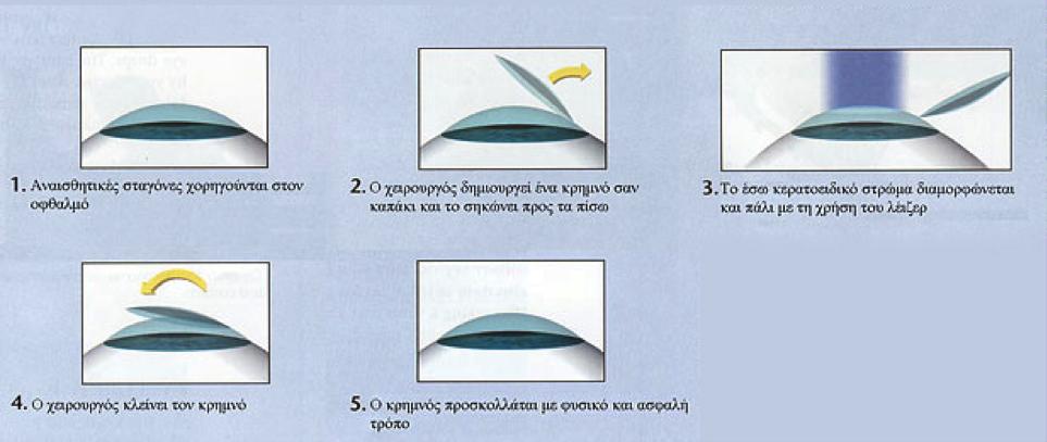 LASIC Διαθλαστική Χειρουργική Διαθλαστική Χειρουργική LASIC